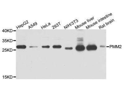PMM2 Polyclonal Antibody