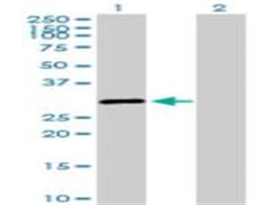 SALL2 Antibody