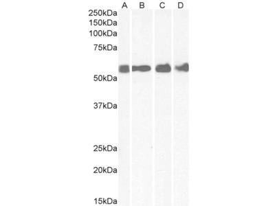 CRFR1 / CRHR1 Antibody