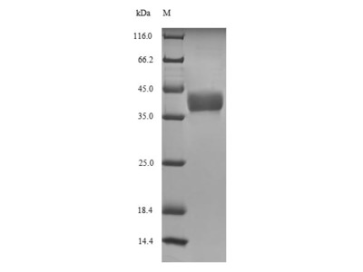 Recombinant Xenopus laevis Histone H1.0-A (h1f0-a)