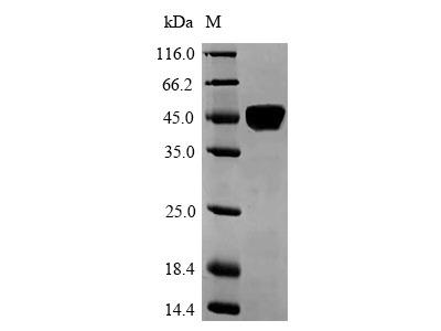 Recombinant Human Laminin subunit alpha-5 (LAMA5),partial