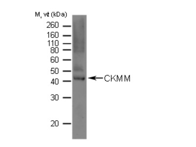 GOAT ANTI HUMAN CREATINE PHOSPHOKINASE (MM)