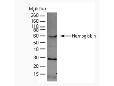 SHEEP ANTI HUMAN HEMOGLOBIN