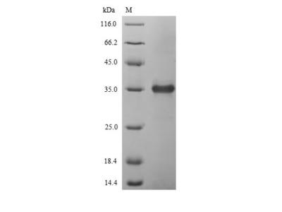Recombinant Enterobacteria phage T4 Lysozyme (E)