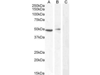 TBC1D10C / CARABIN Antibody