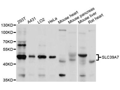 SLC39A7 Polyclonal Antibody