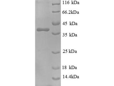 Recombinant Human Nephrocystin-1 (NPHP1)