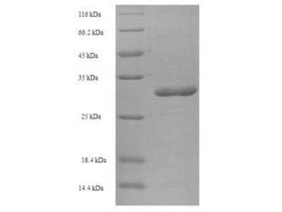 Recombinant Human Store-operated calcium entry-associated regulatory factor (TMEM66)
