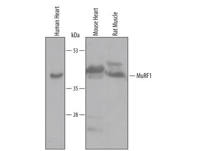 MuRF1 /TRIM63 Antibody