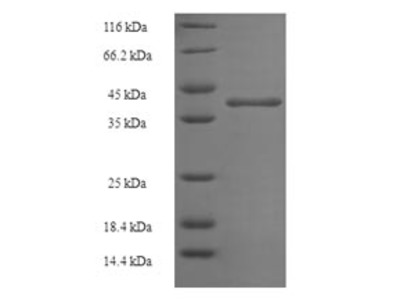 Recombinant Human N(6)-adenine-specific DNA methyltransferase 2