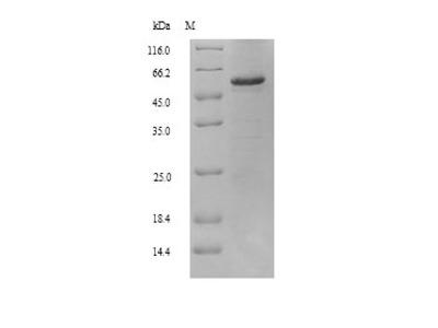 Recombinant Human Retinal dehydrogenase 2 (ALDH1A2)