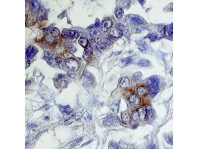 Immunocytochemistry of a Her2 Variant