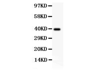 Anti-AAMP CCL18 Antibody Picoband