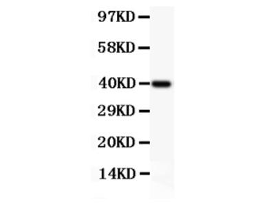 Anti-Perforin/PRF1 Picoband Antibody