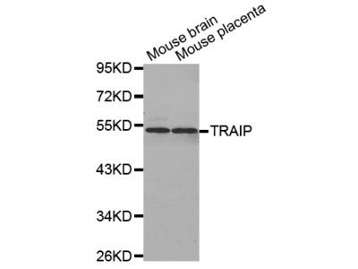TRAIP / TRIP Antibody