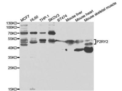 P2RY2 / P2Y2 Polyclonal Antibody