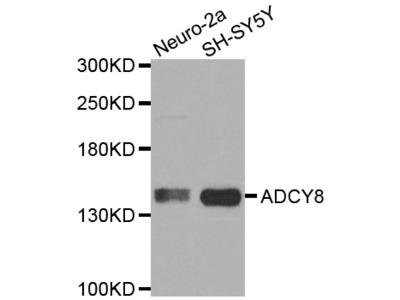 ADCY8 / Adenylate Cyclase 8 Polyclonal Antibody