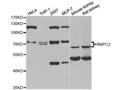 RBM40 / RNPC3 Antibody