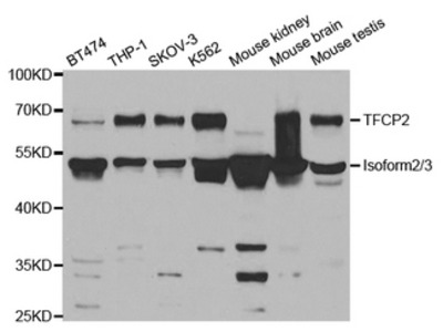 TFCP2 / CP2 Antibody