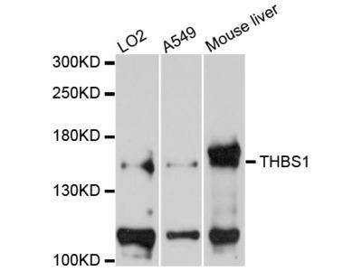 THBS1 / Thrombospondin-1 Antibody