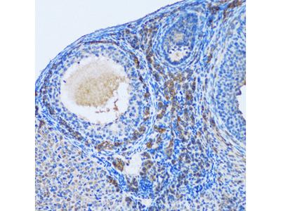 OGDH Polyclonal Antibody