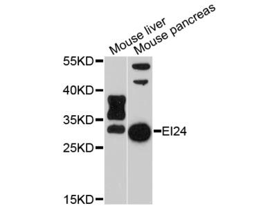 PIG8 / EI24 Polyclonal Antibody