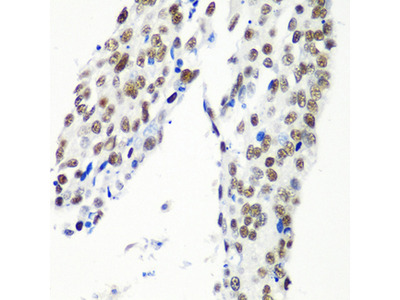HTATSF1 / TAT-SF1 Antibody