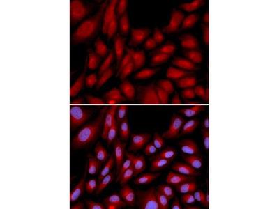 BAG1 / BAG-1 Antibody