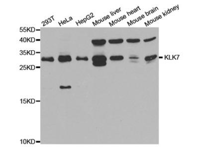 KLK7 / Kallikrein 7 Antibody