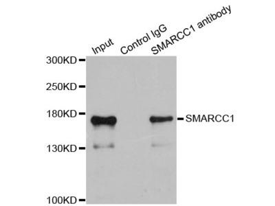 SMARCC1 / SWI3 Polyclonal Antibody
