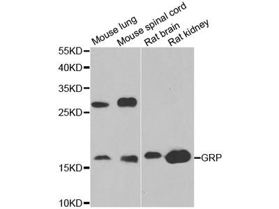 Gastrin Releasing Peptide Antibody