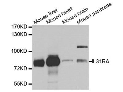IL31RA Polyclonal Antibody