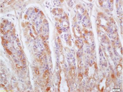 Gastrokine 1 Antibody, Biotin Conjugated