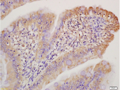 Collagen 1 Antibody