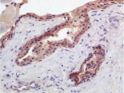 PTGFR antibody
