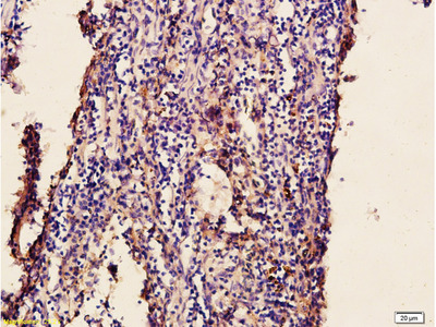 Newcastle disease virus Antibody