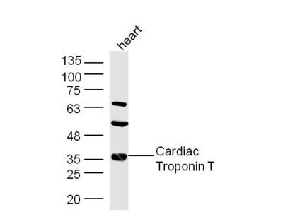 Troponin T Antibody, Biotin Conjugated