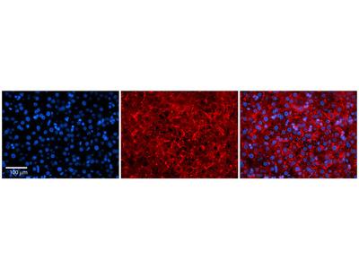 MTRR Antibody - middle region (ARP74073_P050)