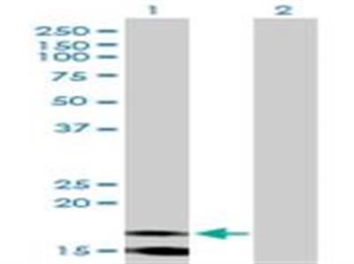 CD3 zeta Antibody