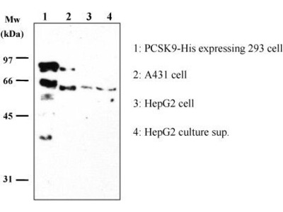 Anti-PCSK9 (Human) mAb