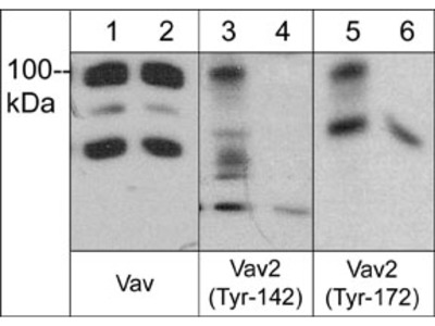 Vav Phospho-Regulation Antibody Sampler Kit