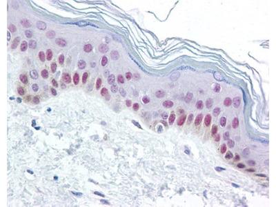 XPC antibody