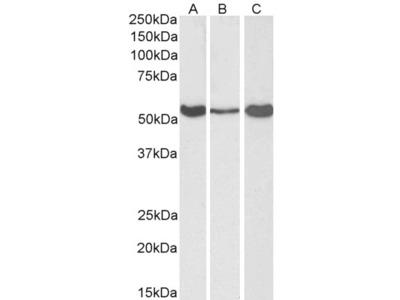 ALDH1A1 / ALDH1 Antibody