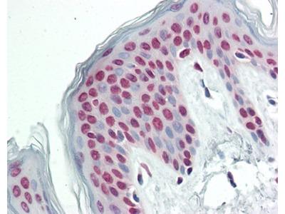 CPSF7 antibody