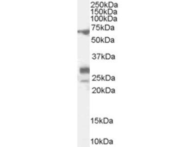 SALL4 Antibody