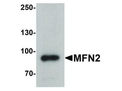 Mitofusin 2 / MFN2 Antibody