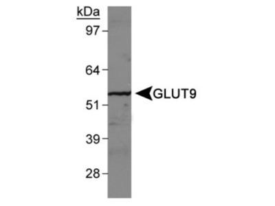 Rabbit Polyclonal GLUT9 Antibody