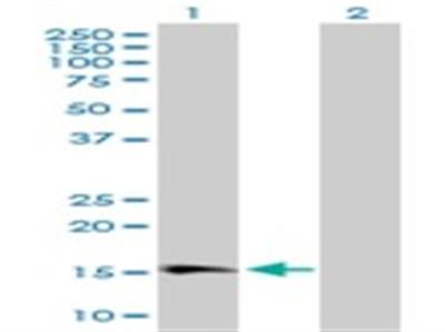 GPI-PLD / GPLD1 Antibody