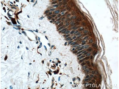 CHRNA9 Antibody