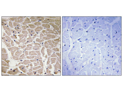 Collagen XVI alpha 1 Antibody